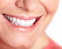 teeth_whitening_1 Bell Dental Group | Cincinnati, OH Dentist