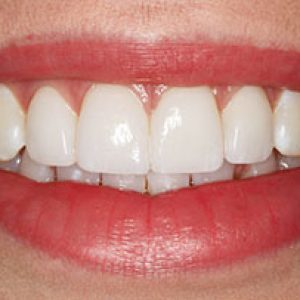 veneers6-after- Smile Gallery Bell Dental Group | Cincinnati, OH Dentist