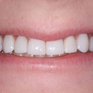 veneers7-After- Smile Gallery Bell Dental Group | Cincinnati, OH Dentist