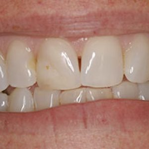 crowns-before - Smile Gallery Bell Dental Group | Cincinnati, OH Dentist