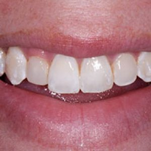veneers8-Before- Smile Gallery Bell Dental Group | Cincinnati, OH Dentist