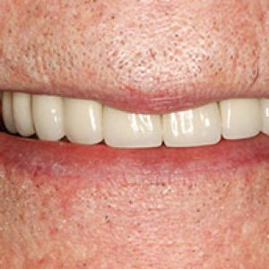 Veneers2-After- Smile Gallery Bell Dental Group | Cincinnati, OH Dentist